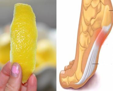 citrom-fb