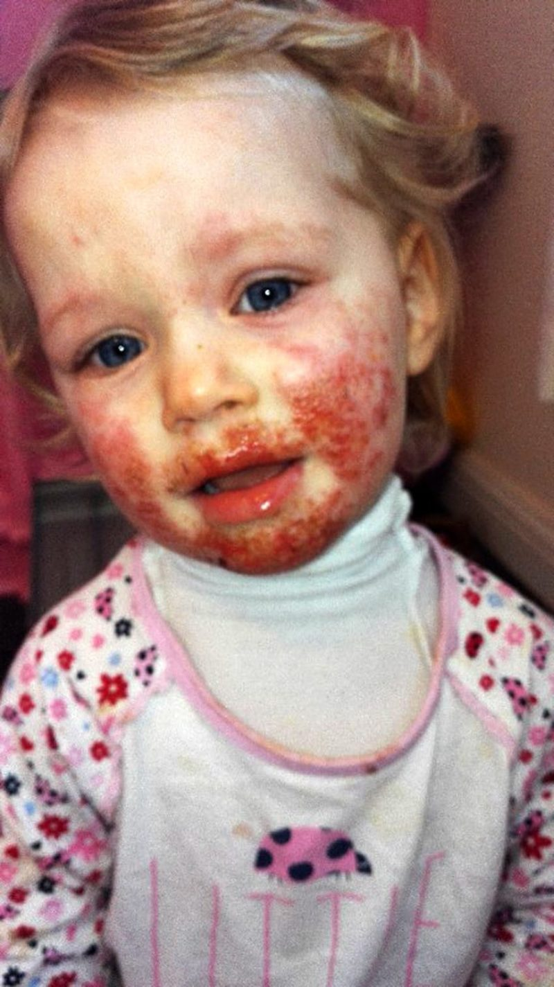 PIC FROM CATERS NEWS - (PICTURED: Sienna Duffield when her condition was at its worse.) -An adorable toddler who was being eaten alive by a ravaging skin infection has finally recovered. Sienna Duffield, who is now three years old, was diagnosed with herpes earlier in the year - a contagious virus, which caused blisters to spread across her face. The toddler kissed a family member in October 2015 which caused the severe infection. Her mother, Savina French-Bell, 21, had to wash Siennas bed sheets daily and constantly throw out clothes because of daily blood stains from Siennas sores. The painful blisters were extremely itchy and caused Siennas sensitive skin to be covered in blood stains and pus. Sienna was admitted to hospital on her second birthday in October 2015 where she was placed on an iv drip because she had stopped eating. Savina then sought advice for creams and antibiotics to prevent Siennas condition from getting even worse. The young mother is now sharing their story to help other parents battling the same condition. SEE CATERS COPY.