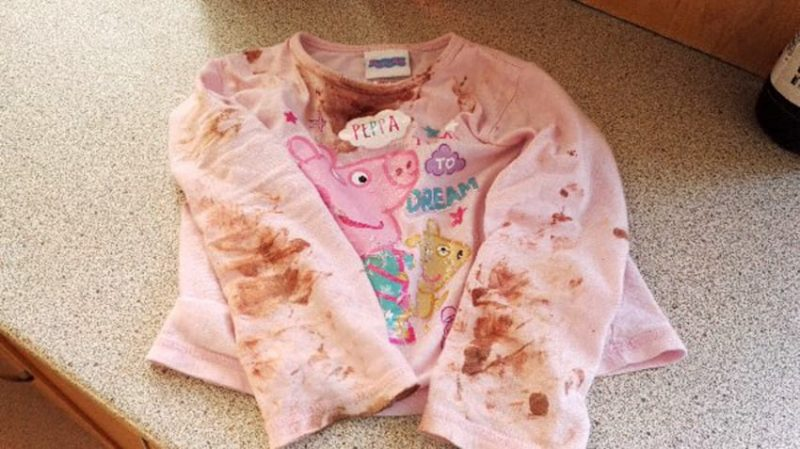 PIC FROM CATERS NEWS - (PICTURED: Sienna Duffields bloody clothes..) -An adorable toddler who was being eaten alive by a ravaging skin infection has finally recovered. Sienna Duffield, who is now three years old, was diagnosed with herpes earlier in the year - a contagious virus, which caused blisters to spread across her face. The toddler kissed a family member in October 2015 which caused the severe infection. Her mother, Savina French-Bell, 21, had to wash Siennas bed sheets daily and constantly throw out clothes because of daily blood stains from Siennas sores. The painful blisters were extremely itchy and caused Siennas sensitive skin to be covered in blood stains and pus. Sienna was admitted to hospital on her second birthday in October 2015 where she was placed on an iv drip because she had stopped eating. Savina then sought advice for creams and antibiotics to prevent Siennas condition from getting even worse. The young mother is now sharing their story to help other parents battling the same condition. SEE CATERS COPY.