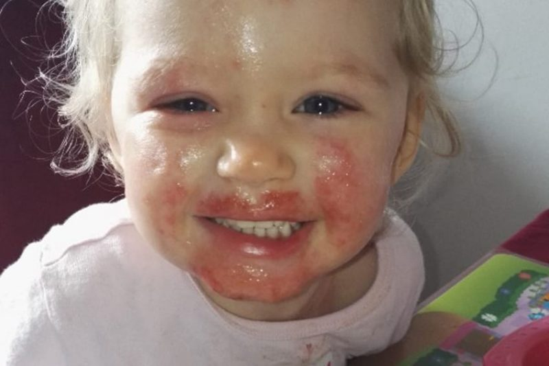 PIC FROM CATERS NEWS - (PICTURED: Sienna Duffield when her condition was healing.) -An adorable toddler who was being eaten alive by a ravaging skin infection has finally recovered. Sienna Duffield, who is now three years old, was diagnosed with herpes earlier in the year - a contagious virus, which caused blisters to spread across her face. The toddler kissed a family member in October 2015 which caused the severe infection. Her mother, Savina French-Bell, 21, had to wash Siennas bed sheets daily and constantly throw out clothes because of daily blood stains from Siennas sores. The painful blisters were extremely itchy and caused Siennas sensitive skin to be covered in blood stains and pus. Sienna was admitted to hospital on her second birthday in October 2015 where she was placed on an iv drip because she had stopped eating. Savina then sought advice for creams and antibiotics to prevent Siennas condition from getting even worse. The young mother is now sharing their story to help other parents battling the same condition. SEE CATERS COPY.